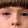Как правильно лечить конъюнктивит у детей
