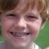 Как выбрать брекет-систему для детей?