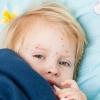 Какая бывает сыпь на лице у новорожденного
