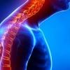 Кифоз грудного отдела позвоночника