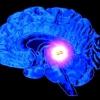 Киста в головном мозге у взрослого