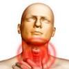 Комок в горле. Причины и лечение