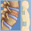 Компрессионный перелом позвоночника поясничного отдела: разновидности и лечение