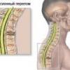 Компрессионный перелом позвоночника, симптомы, лечение