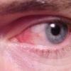 Конъюктивит или красный глаз: симптомы, лечение