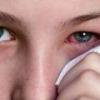 Коньюктивит - причины, симптомы и лечение