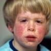Краснуха: причины, симптомы, лечение