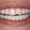 Крошатся зубы – что делать?