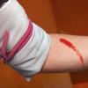Кровотечение - виды, последствия и методы временной остановки