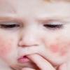 Лечение диатеза народными средствами