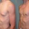 Лечение гинекомастии у мужчин и подростков. Причины истинной и ложной гинекомастии