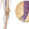 Лечение глубоких вен нижних конечностей