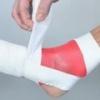 Лечение переломов костей народными средствами