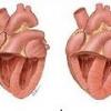 Легочное сердце: причины, симптомы, лечение