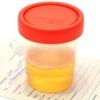 Лейкоциты в моче повышены причины