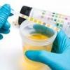 Лейкоциты в моче при беременности, норма, повышение