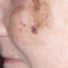 Лентиго меланома: как определить и вылечить заболевание