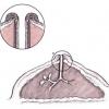 Меланома на соске: диагностика и методы лечения