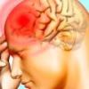 Менингит у взрослых: симптомы, лечение