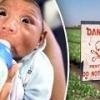 Микроцефалия у новорожденного не связана с вирусом зика