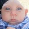 Микроцефалия у новорожденного: причины, симптомы, лечение