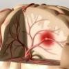 Микроинсульт: причины, симптомы, лечение