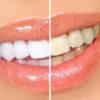 Можно ли отбелить зубы в домашних условиях? Наиболее популярные методы