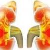 Нефротический синдром - причины, симптомы и лечение