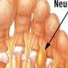 Неврома мортона (боль в стопе) - причины, симптомы и лечение