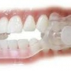 Ночной скрежет зубами – причины, лечение