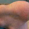 Очень болит ахиллесово сухожилие, что делать?
