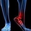 Очень болит кубовидная кость, что делать?