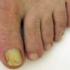 Онихомикоз ногтей - лечение онихомикоза у детей и у взрослых