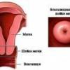 Опущение шейки матки, симптомы, лечение