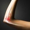 Особенность выявления и лечения меланомы костей