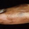 Особенности акральной меланомы и ее лечения