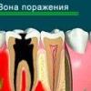 Остеомиелит челюсти: симптомы и лечение