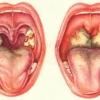 Острый фарингит - симптомы и лечение острого фарингита