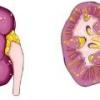 Острый пиелонефрит: симптомы и лечение