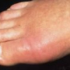 Отек пальцев ног, что делать?
