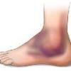Отекают ноги в щиколотках, причины, чем лечить?