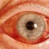 Открытоугольная глаукома: симптомы и лечение