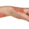 Ожоги: лечение в домашних условиях