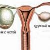 Параовариальная киста яичника - причины, симптомы, лечение
