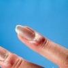 Паронихия (ногтевая инфекция) - причины, симптомы и лечение