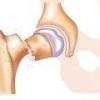 Перелом бедра - причины, симптомы и лечение