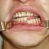 Перелом челюсти: причины, симптомы, лечение