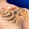 Перелом ключицы, лечение перелома ключицы
