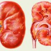 Пиелонефрит острый - симптомы, причины, диагностика и лечение