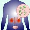 Пиелонефрит, симптомы, лечение